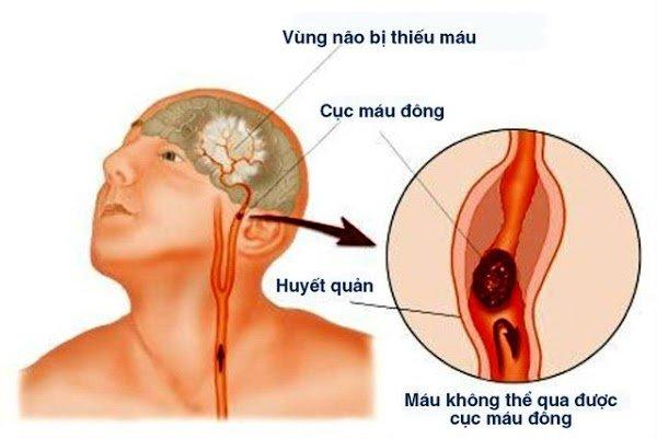 Sau 40 tuổi, nếu xuất hiện 4 dấu hiệu khi ngủ hãy cẩn thận đột quỵ: Đừng cố ngủ tiếp kẻo 'giấc ngàn thu'